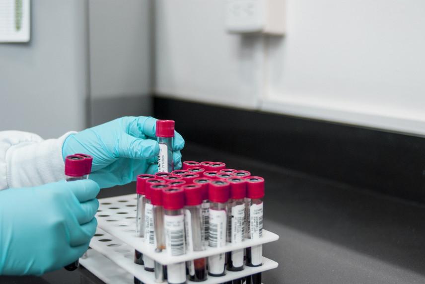 В Чехии ввели обязательный тест на коронавирус для чиновников
